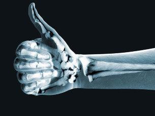 La enfermedad más común que sufre nuestro dedo pulgar ¡CONÓCELA!
