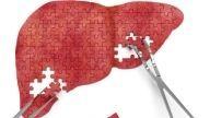 Las funciones del hígado son tan importantes como las del mismo corazón. El hígado es un órgano con más de 500 secretos, te los resumimos en 5