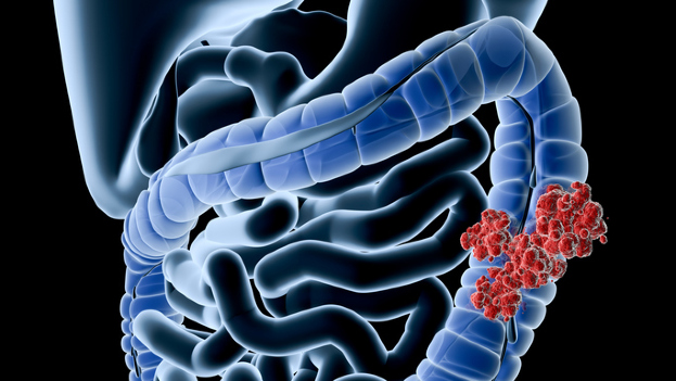 Poderosos síntomas: Señales de un cáncer colorrectal