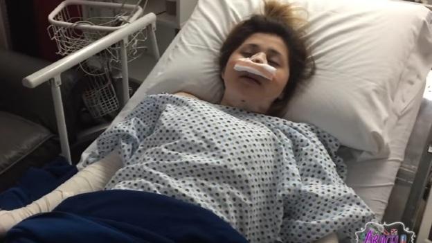 Gomita se sometió a cinco cirugías plásticas