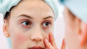 Remedios efectivos para eliminar las ojeras