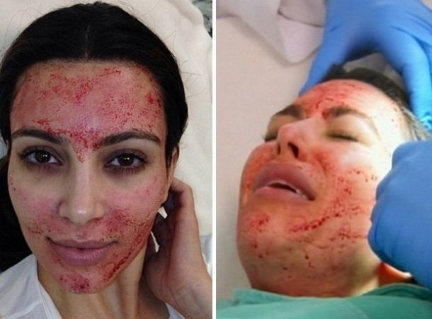 Kim Kardashian se somete al facial vampiro