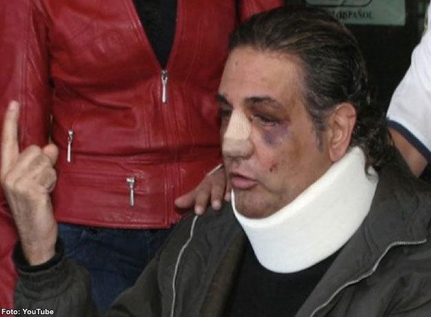 Fabián Lavalle fue brutalmente golpeado por Fernando Cervantes Landa