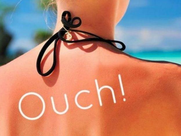 Remedios caseros para las quemaduras de sol